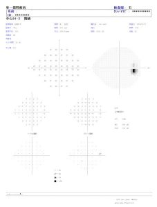 ハンフリー視野検査の結果の例